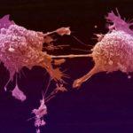 Αυτή είναι η τροφή που  πολλαπλασιάζει τα καρκινικά κύτταρα