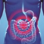 Η ανακάλυψη - Καρκίνος παχέος εντέρου... ανάπτυξη νέων θεραπευτικών στρατηγικών